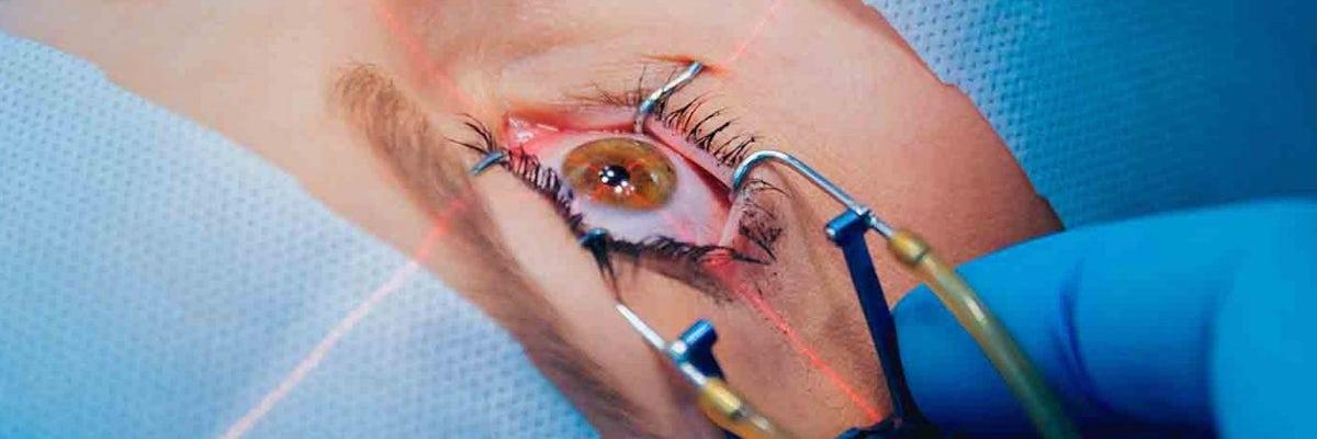 LASIK for Amblyopia